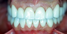 White smile after teeth whitening