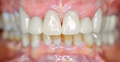 White and healthy smile after treatment