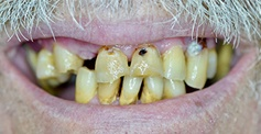 Severely decayed damaged and missing teeth