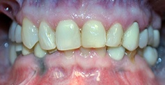 Discolored smile before treatment