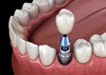 Animation of implant supported dental crown placement