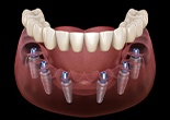 Animaiton of implant supported denture placement