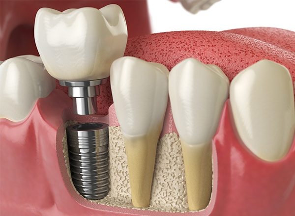 Animation of the implant supported dental crown process