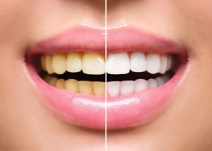 Smiling woman before and after visiting her Queen Creek cosmetic dentist